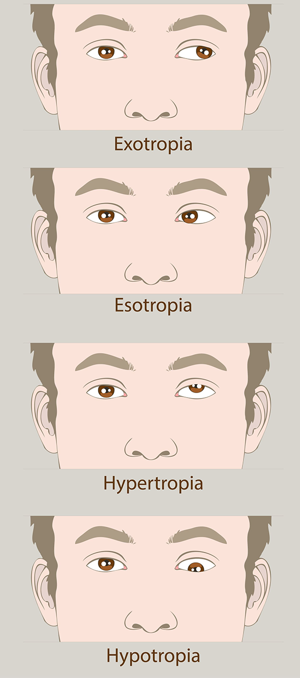 Everything, and amblyopia symptoms in adults