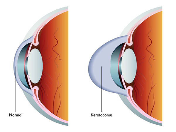 White Plains Keratoconus